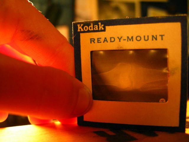 hand holding photographic slide of a bone xray